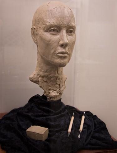 dr. malhotra ann arbor plastic surgery sculpture