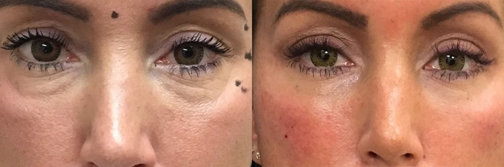 dermal fillers on female patient before and after